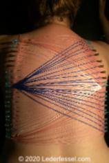 Nadelspiele auf dem Rücken