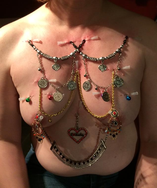 Nadeln in der Brust